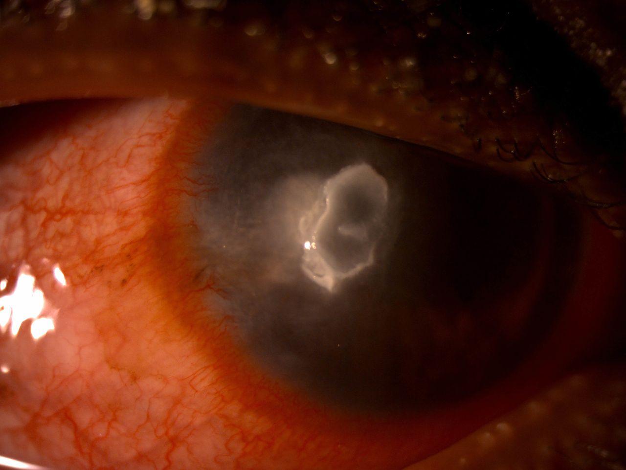 01b255c3b5 Pythium insidiosum and Acanthamoeba keratitis in a contact lens user ...