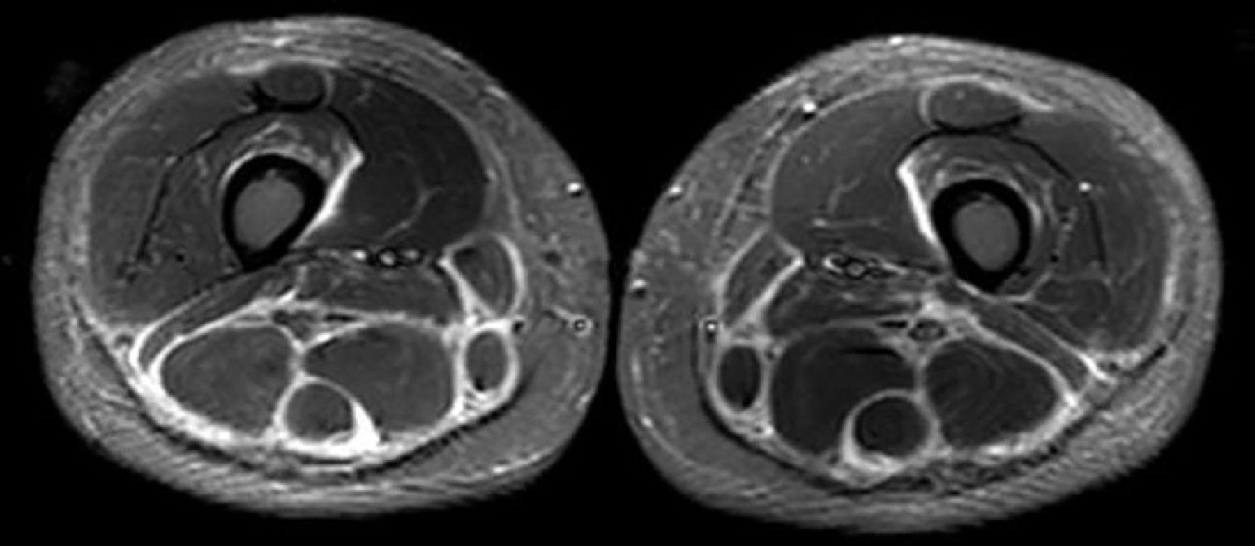 Unusual Presentation Of Eosinophilic Fasciitis Ef With A Raised
