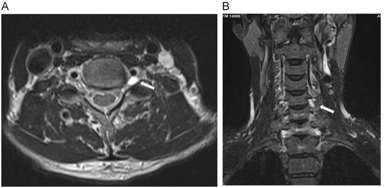 Symptomatic Tarlov cyst in cervical spine | BMJ Case Reports