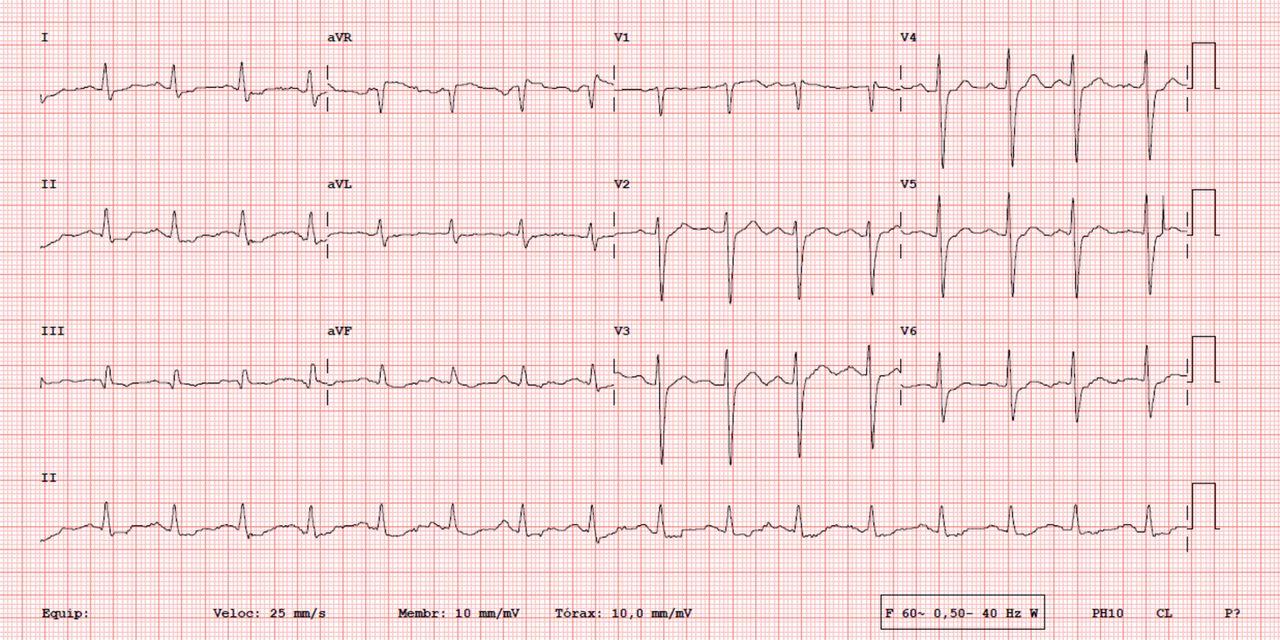 Bidirectional Ventricular Tachycardia Due To Hypokalaemia Bmj Case Reports
