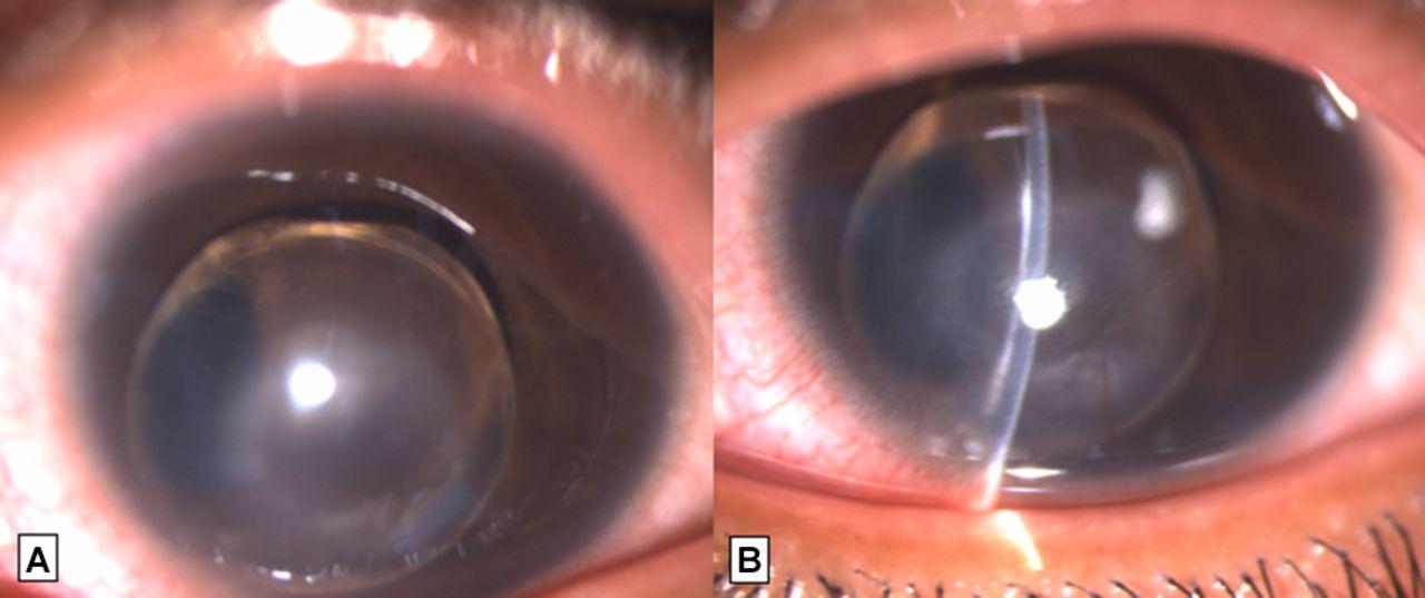 52000086077d Spontaneous anterior dislocation of lens in a case of ectopia lentis ...