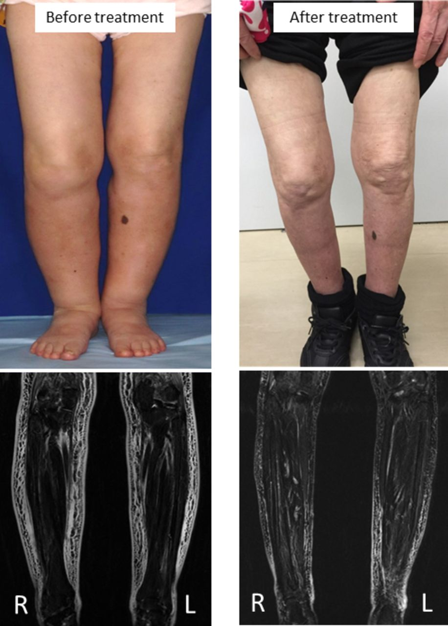 An uncommon cause of leg oedema | BMJ Case Reports