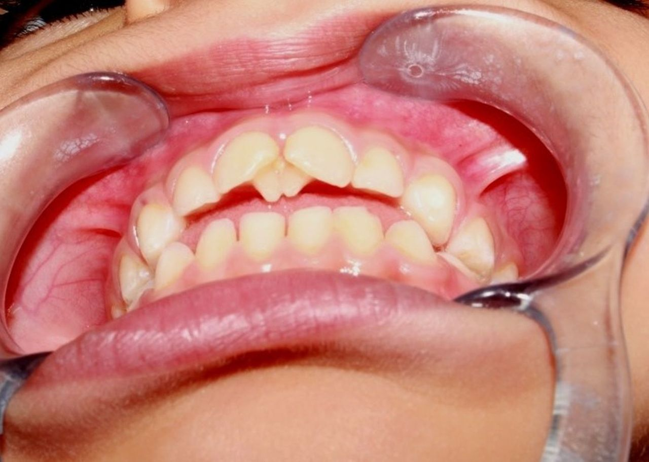 bilateral maxillary palatal talon cusps in deciduous