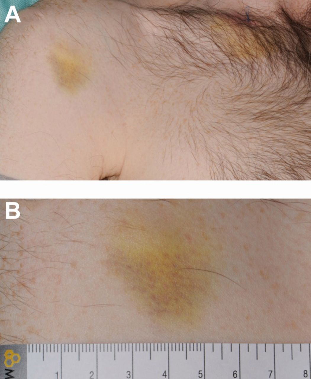 Sentinel bruising as a presentation of metastatic melanoma   BMJ