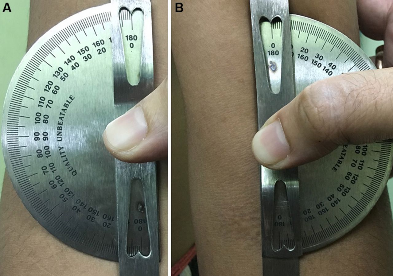 Near absent carrying angles: a clinical clue to underlying