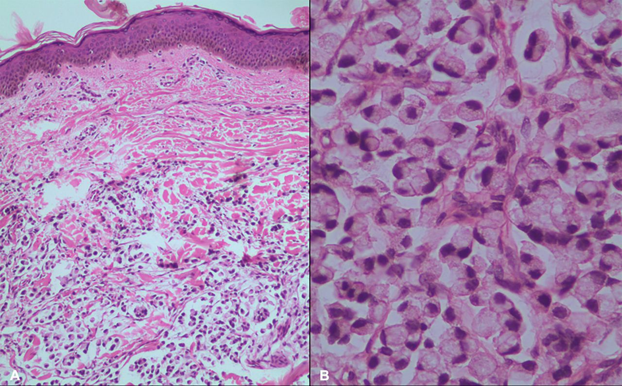 Signet Ring Cell Carcinoma Of The Rectum Atypical Metastatic Presentation Bmj Case Reports