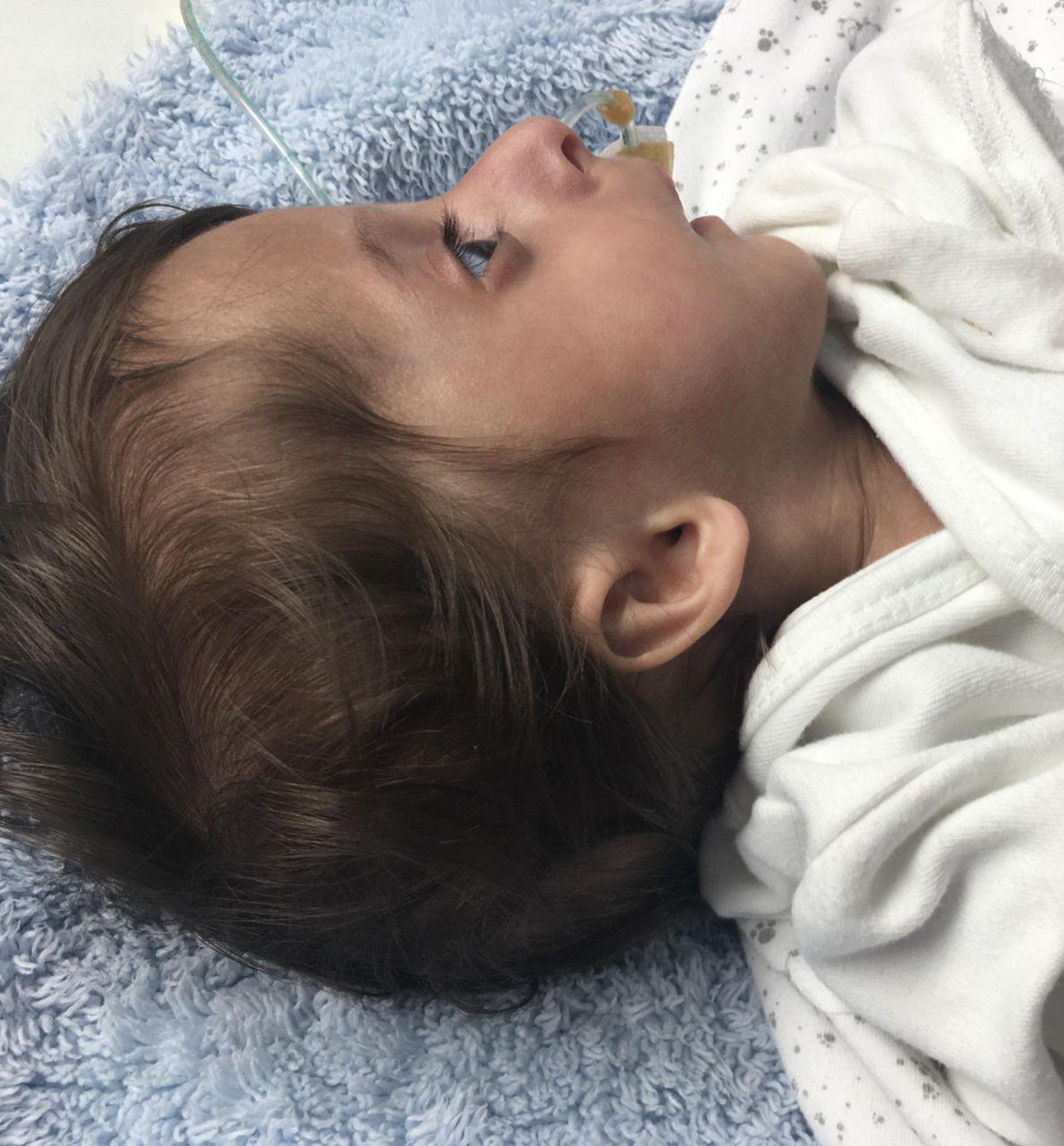 Majewski dwarfism type II: an atypical neuroradiological
