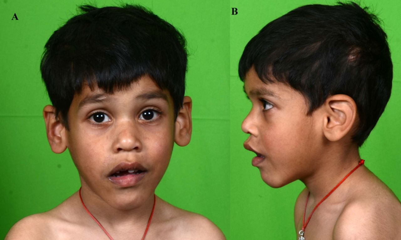 Intellectual disability in boys: mark the face! | BMJ Case