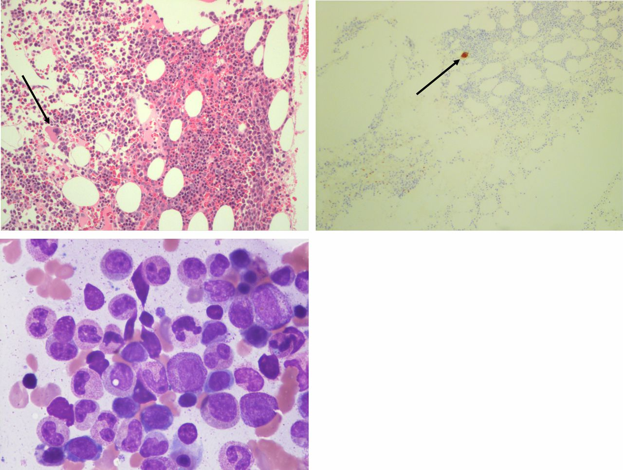 Acquired amegakaryocytic thrombocytopenia as a rare cause of