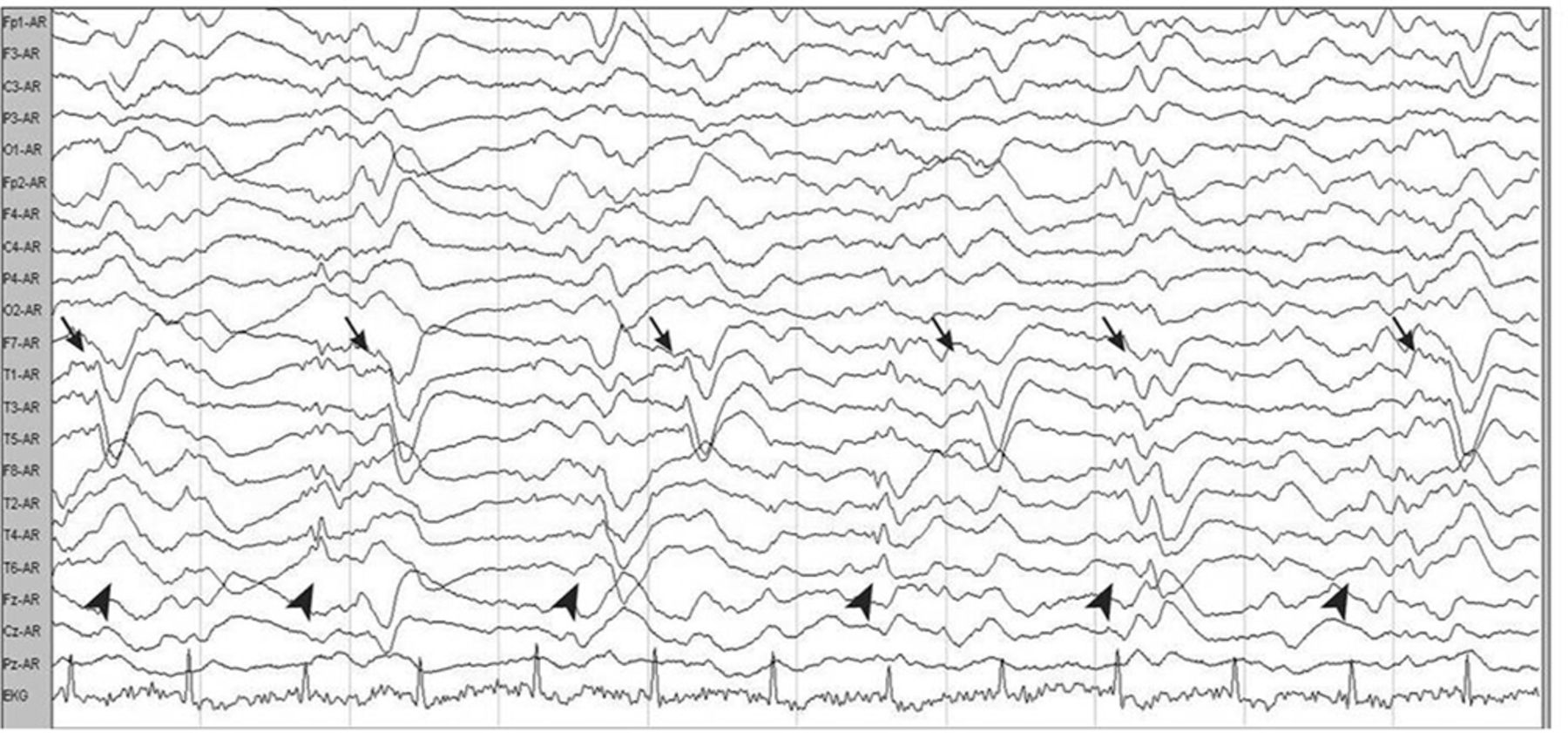 Bilateral independent periodic lateralised epileptiform