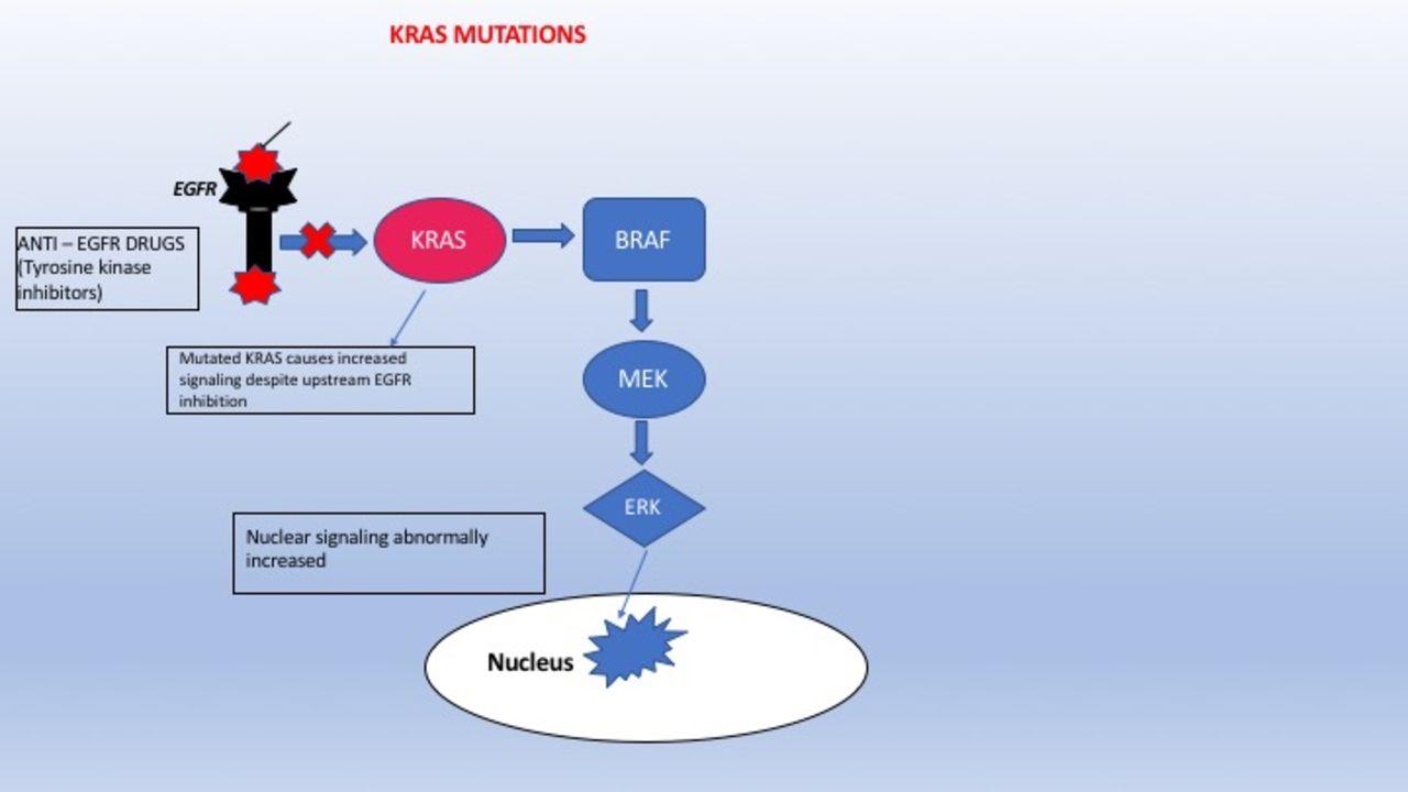 Rare Case Of Triple Mutant Kras Nras Braf Metastatic Colon Adenocarcinoma Bmj Case Reports