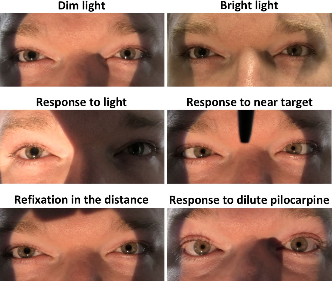 Adies tonic pupil presenting with unilateral photophobia