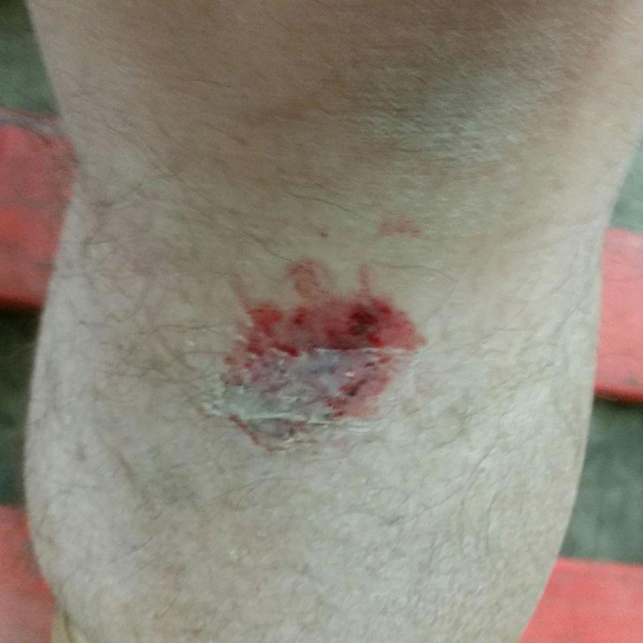 Morel-Lavallée Lesion Of The Anterior Leg: A Rare