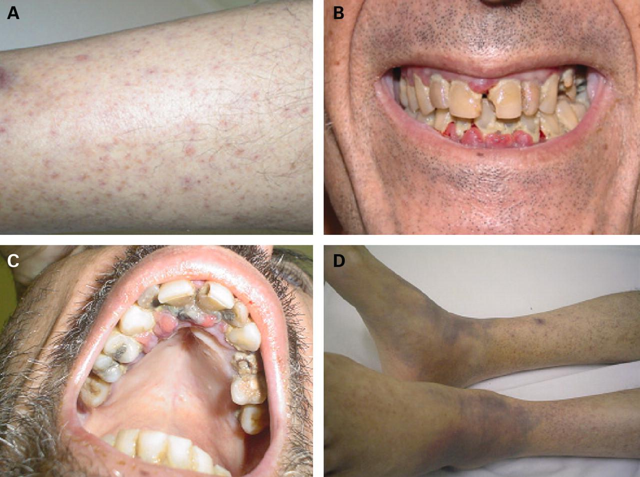 Symptoms of Scurvy - RightDiagnosis.com