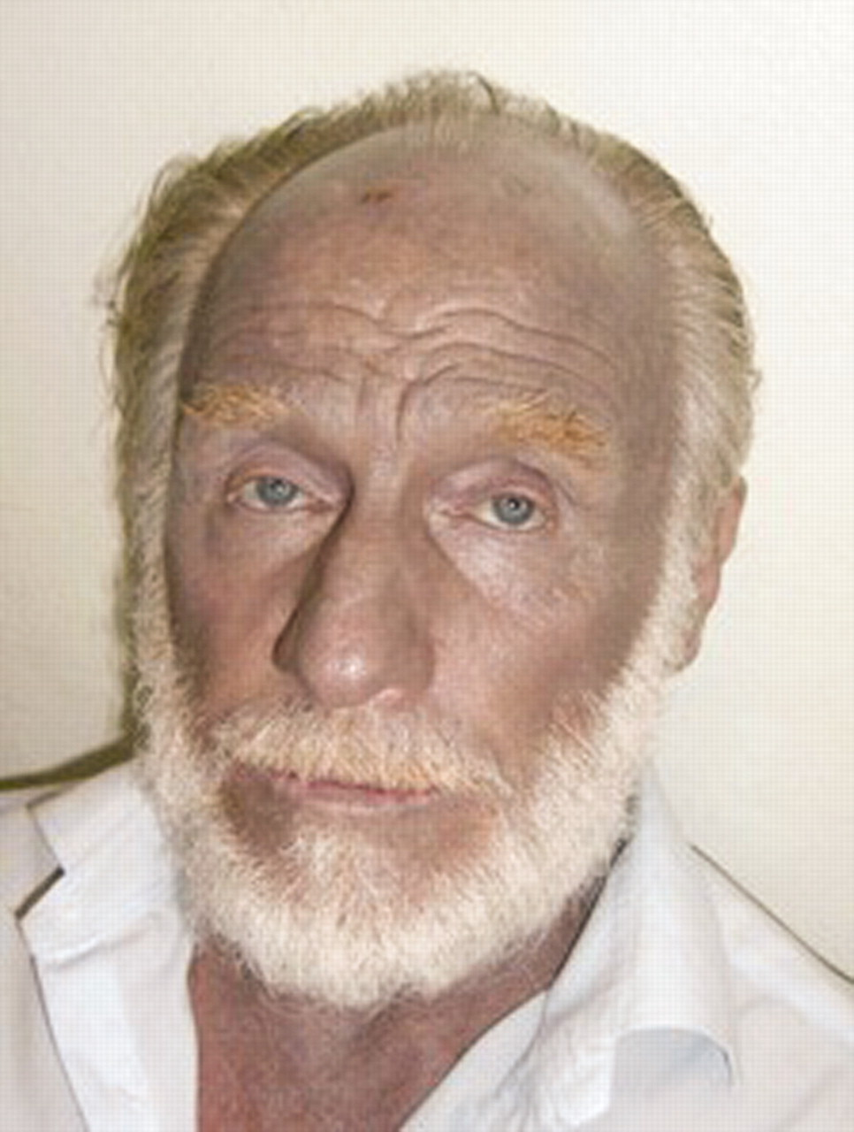 Argyria: permanent skin discoloration following protracted colloid