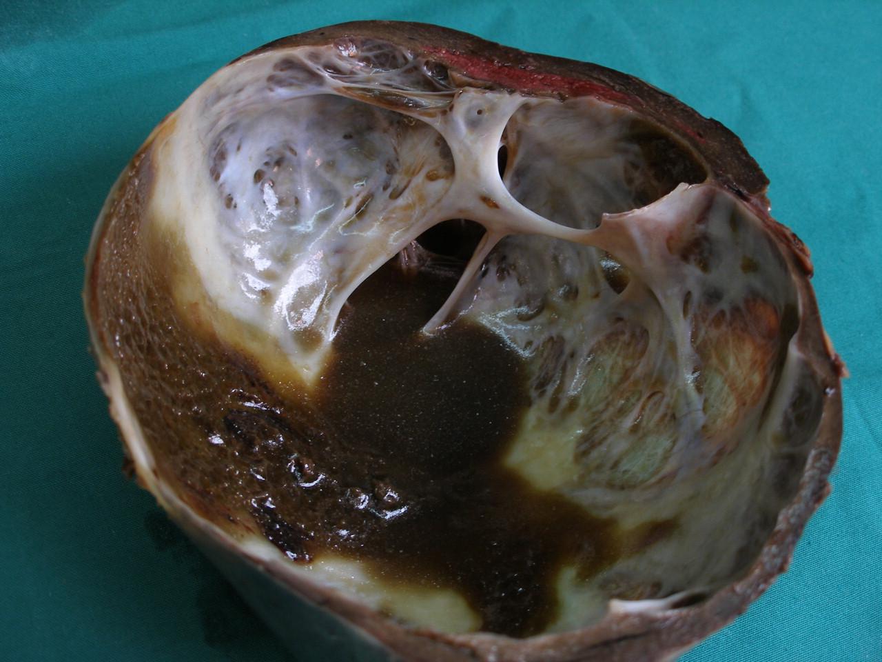 Болките от артрит се церят с храна - orientandoo.com