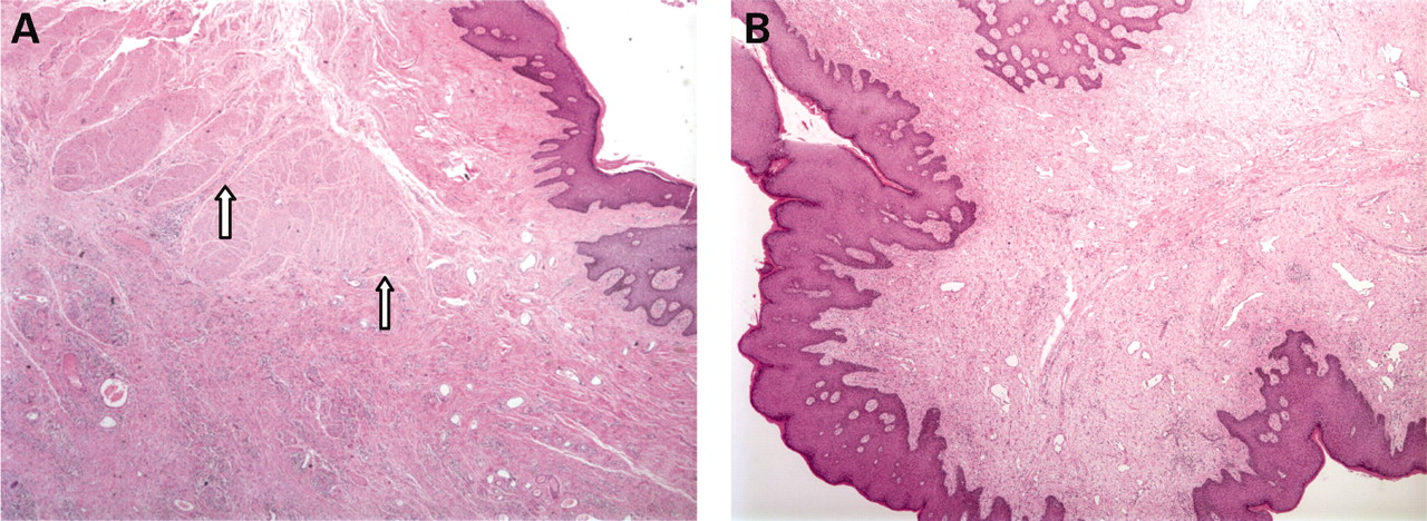 Fibroepithelial polyp of anal