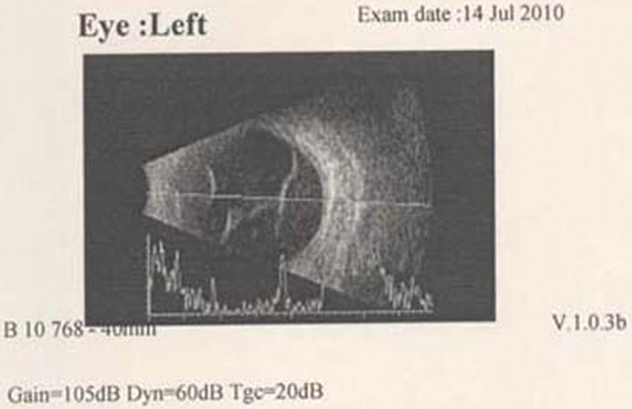 Retinal+detachment+b+scan