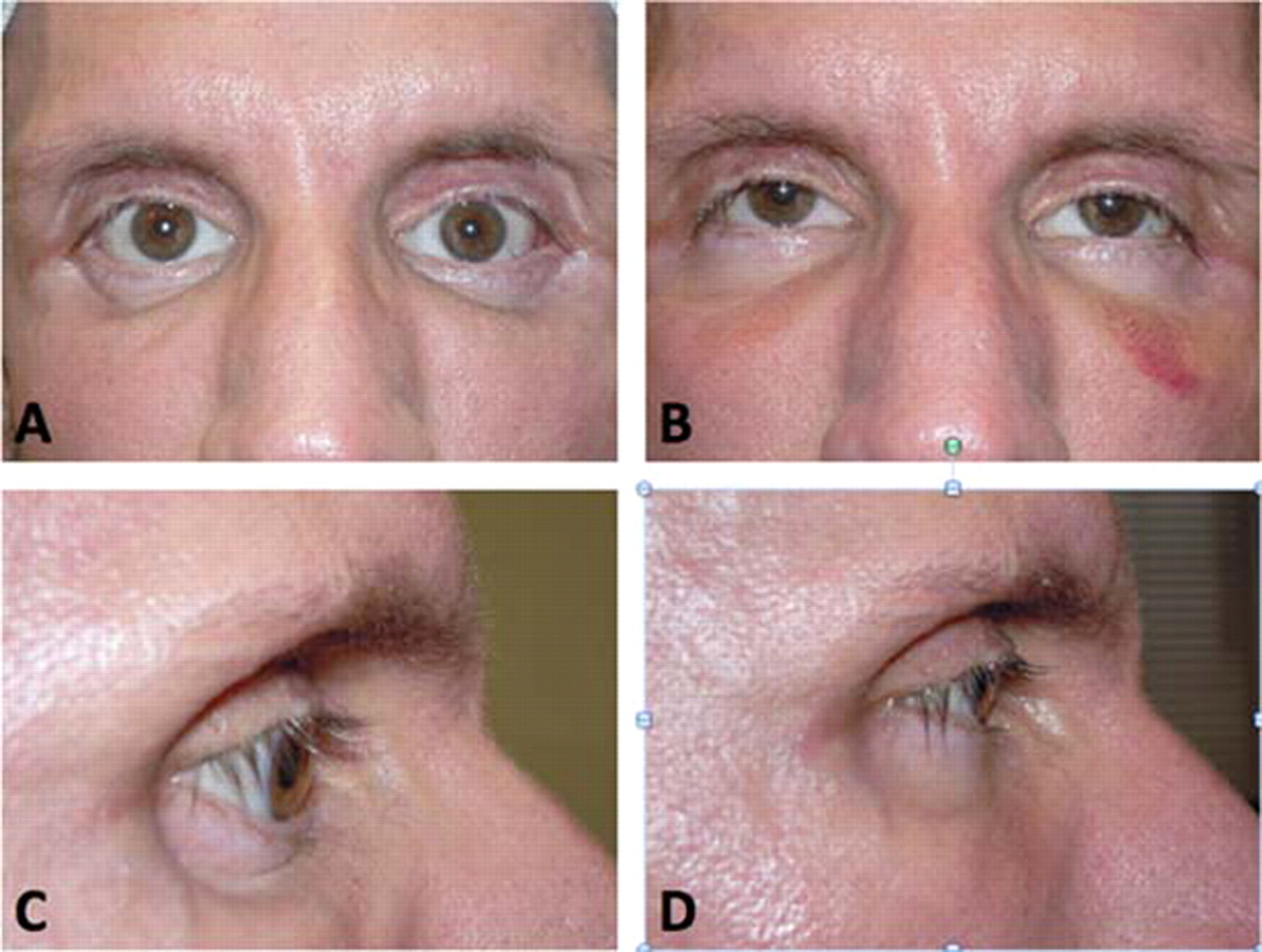 Severe enophthalmos and lagophthalmos secondary to HIV