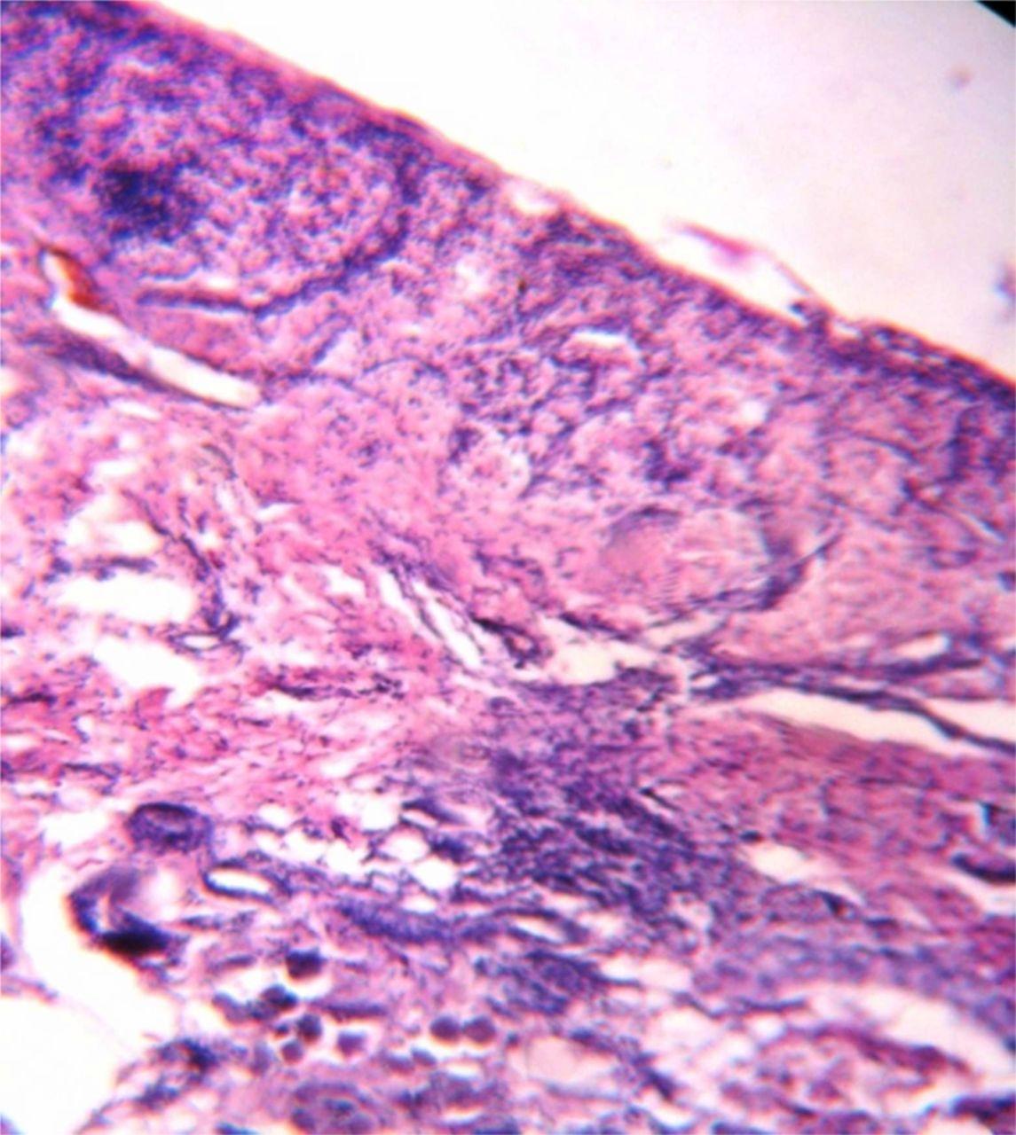 Juvenile Oral Lichen Planus: A Clinical Rarity -- Chaitra