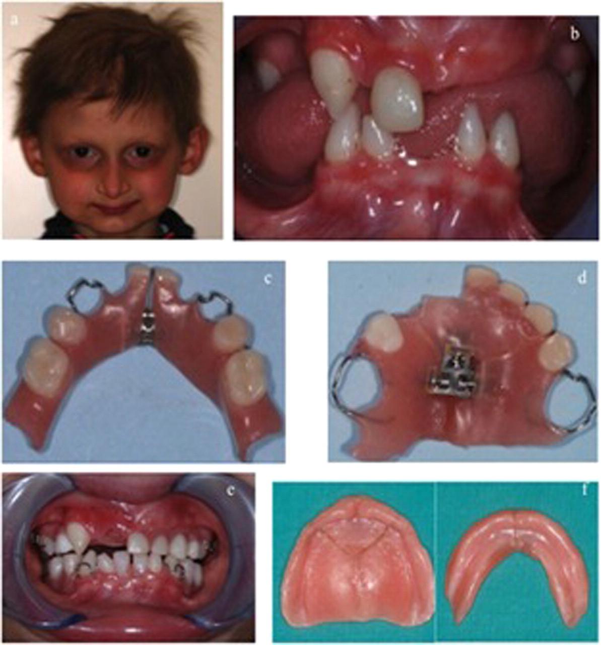 Oral rehabilitation of children with ectodermal dysplasia