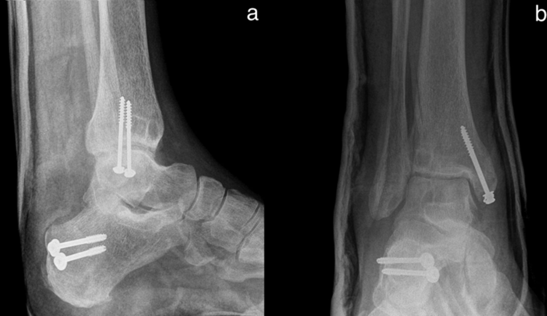 A Rare Cause Of Wound Infection After An Open Fracture -7670
