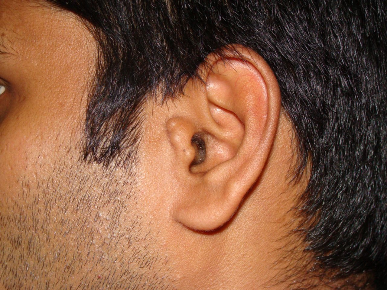 Accessory tragus: a dentist's perspective | BMJ Case Reports