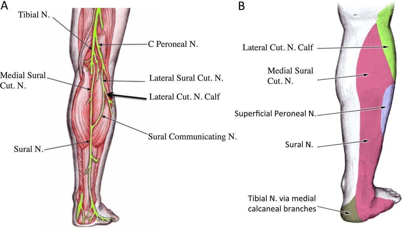 Entrapment Of The Lateral Cutaneous Nerve Of The Calf Bmj Case Reports