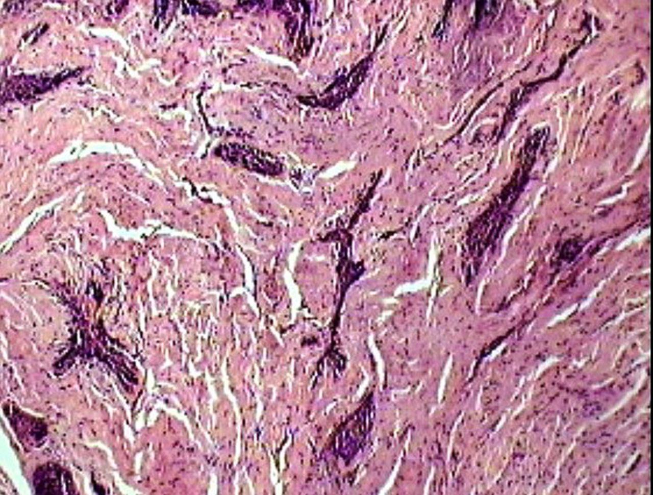 Desmoplastic ameloblastoma: a rare odontogenic neoplasm ...
