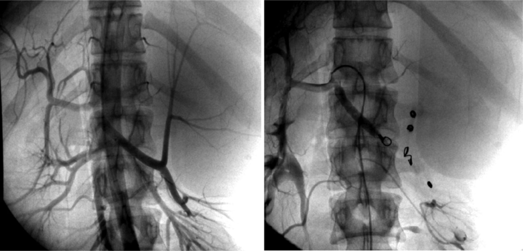 Epidermoid cyst of the spleen | BMJ Case Reports