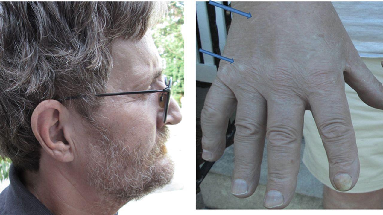 The silver man: a rare cosmetic complication of alternative medicine
