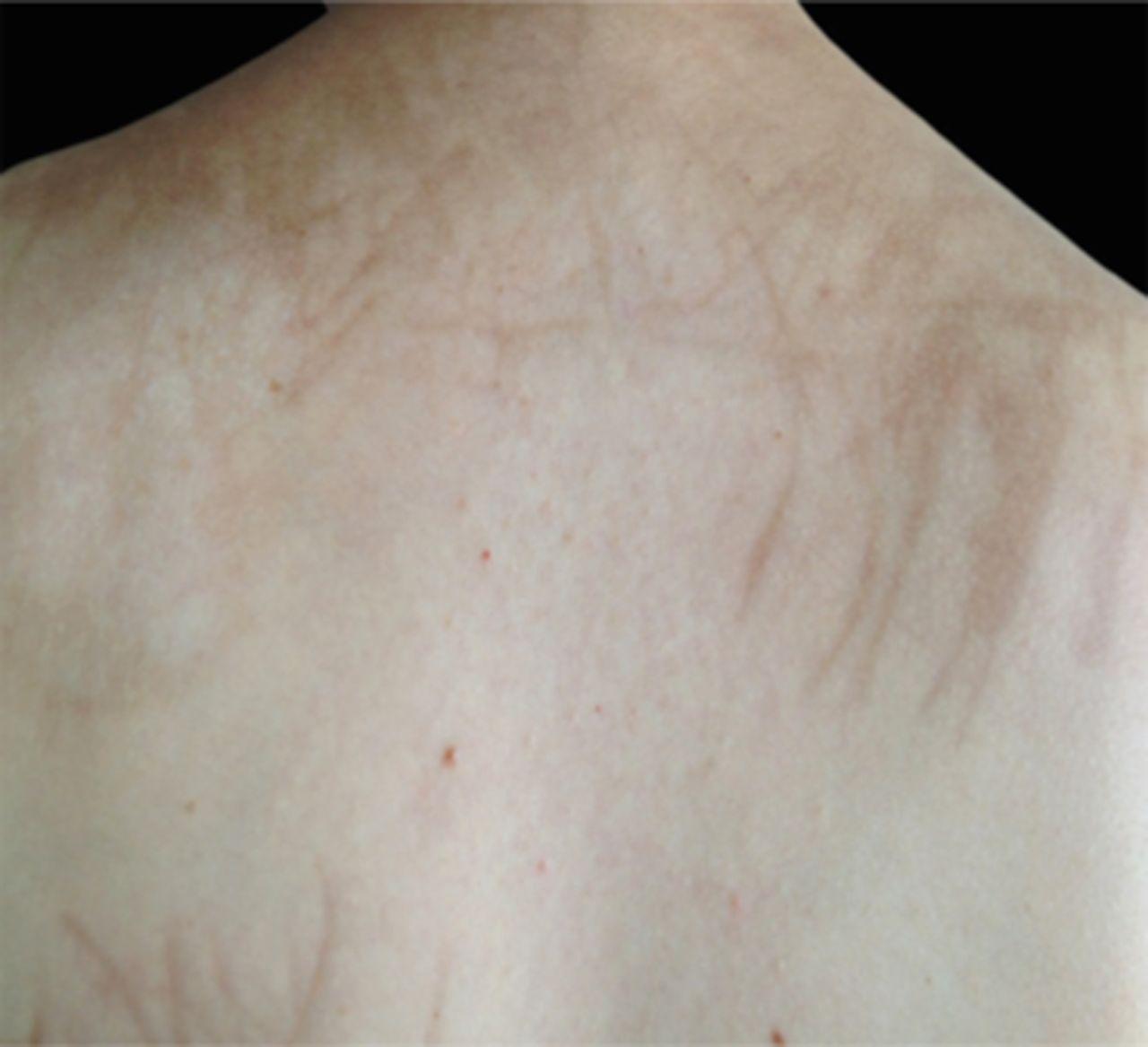 Bleomycin-induced flagellate hyperpigmentation | BMJ Case Reports