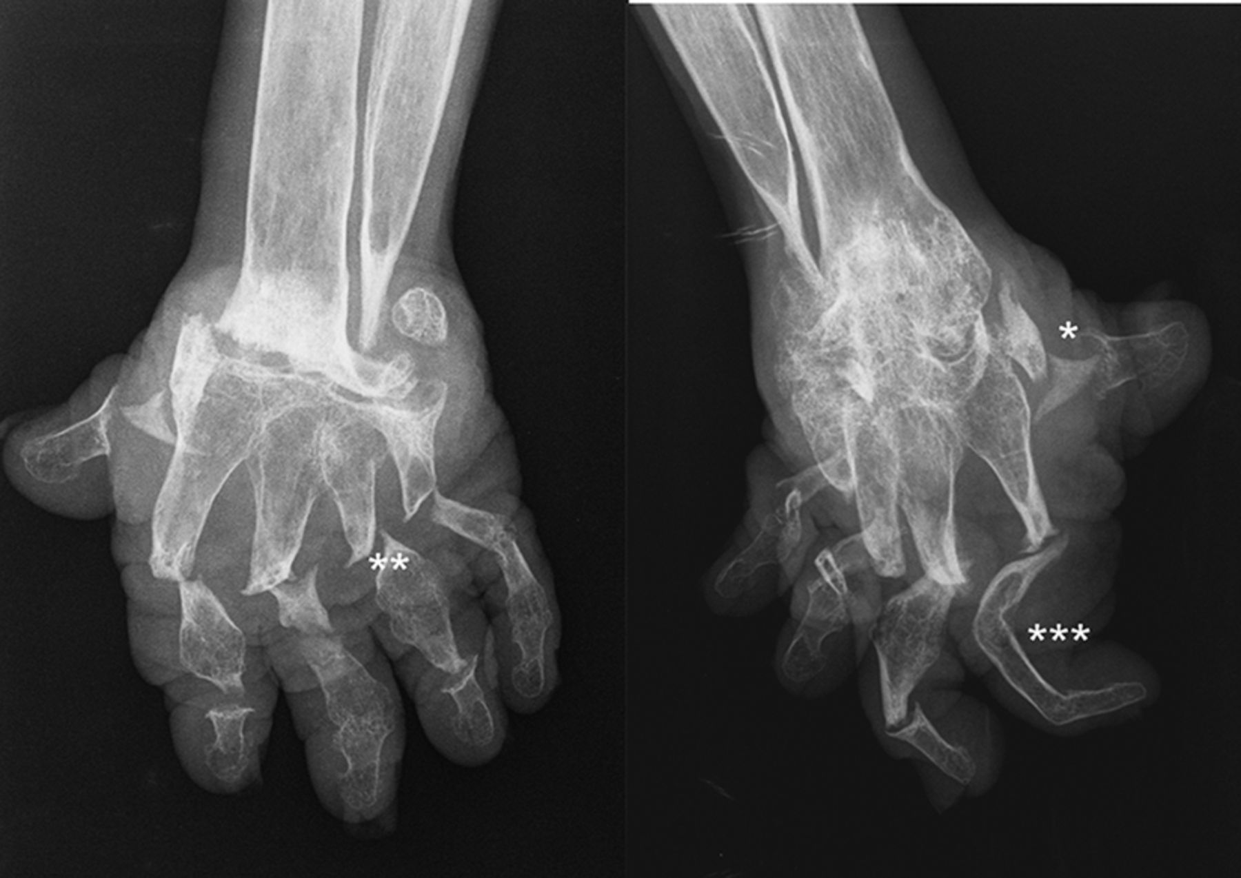 Opera glass hands the phenotype of arthritis mutilans