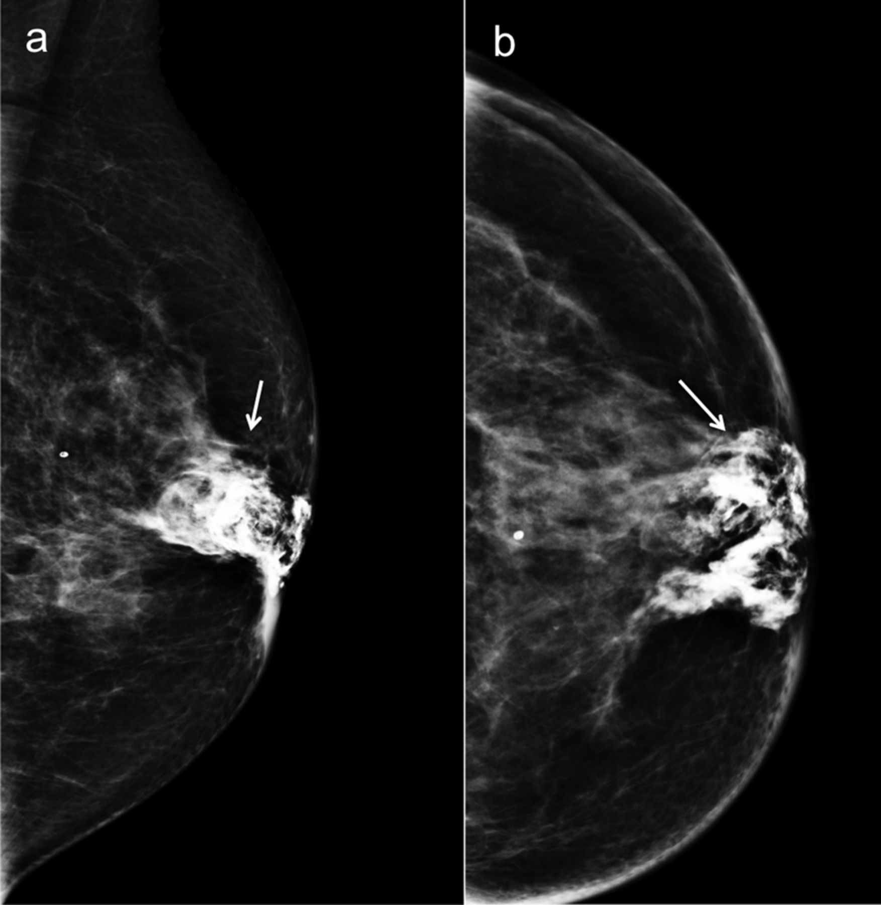 Changes Following Nipple Areolar Complex Reconstruction -9121