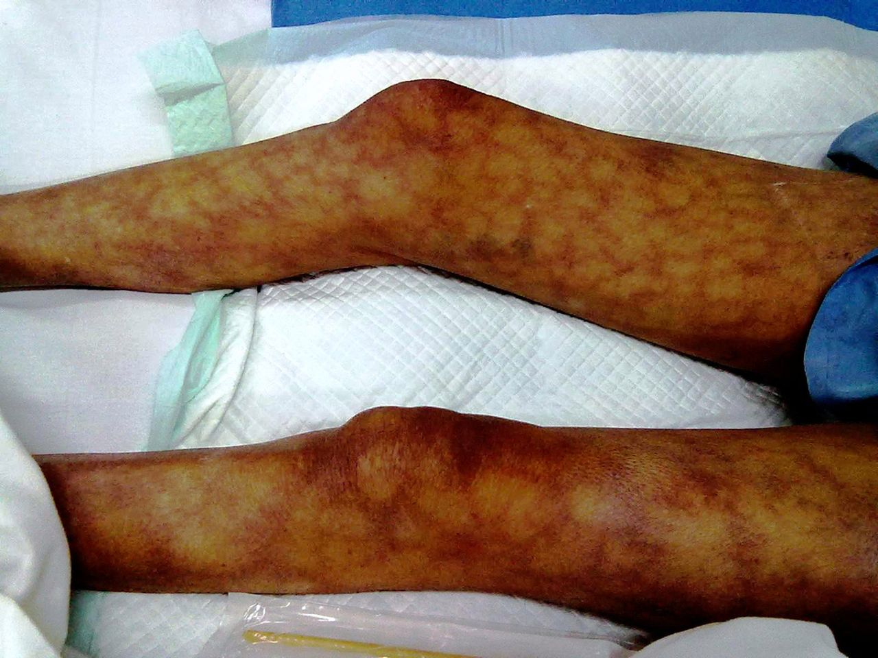 Livedo reticularis heralding hypercalcaemia of malignancy