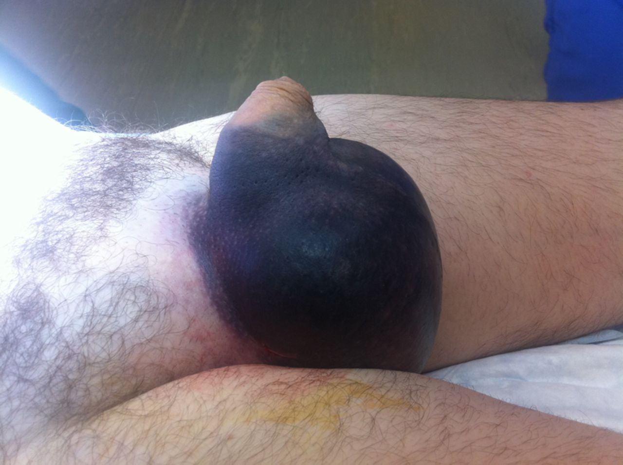 Edema After C Section Pleural Effusion Wikipedia