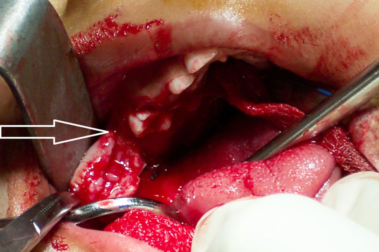 Bilateral eruption cysts associated with primary molars in
