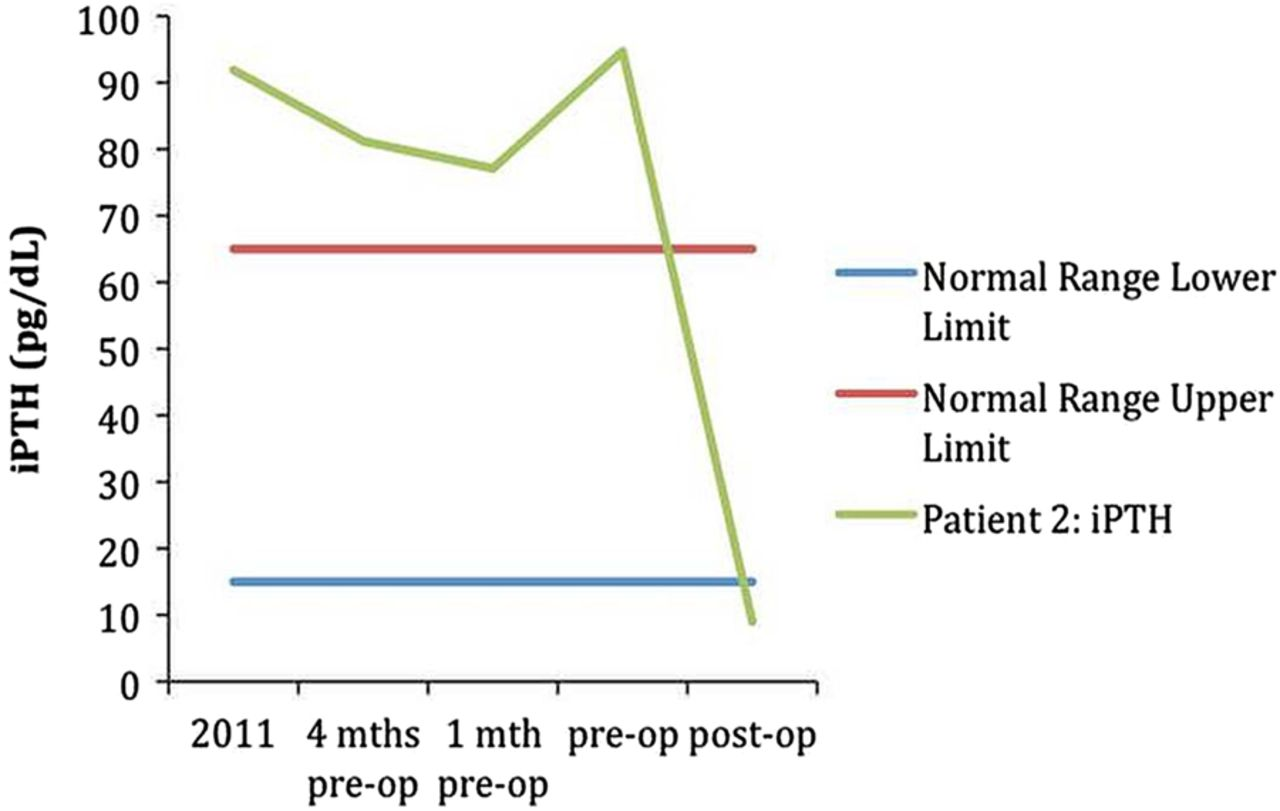 two cases of primary hyperparathyroidism in pregnancy hession et al 2014 bmj reports
