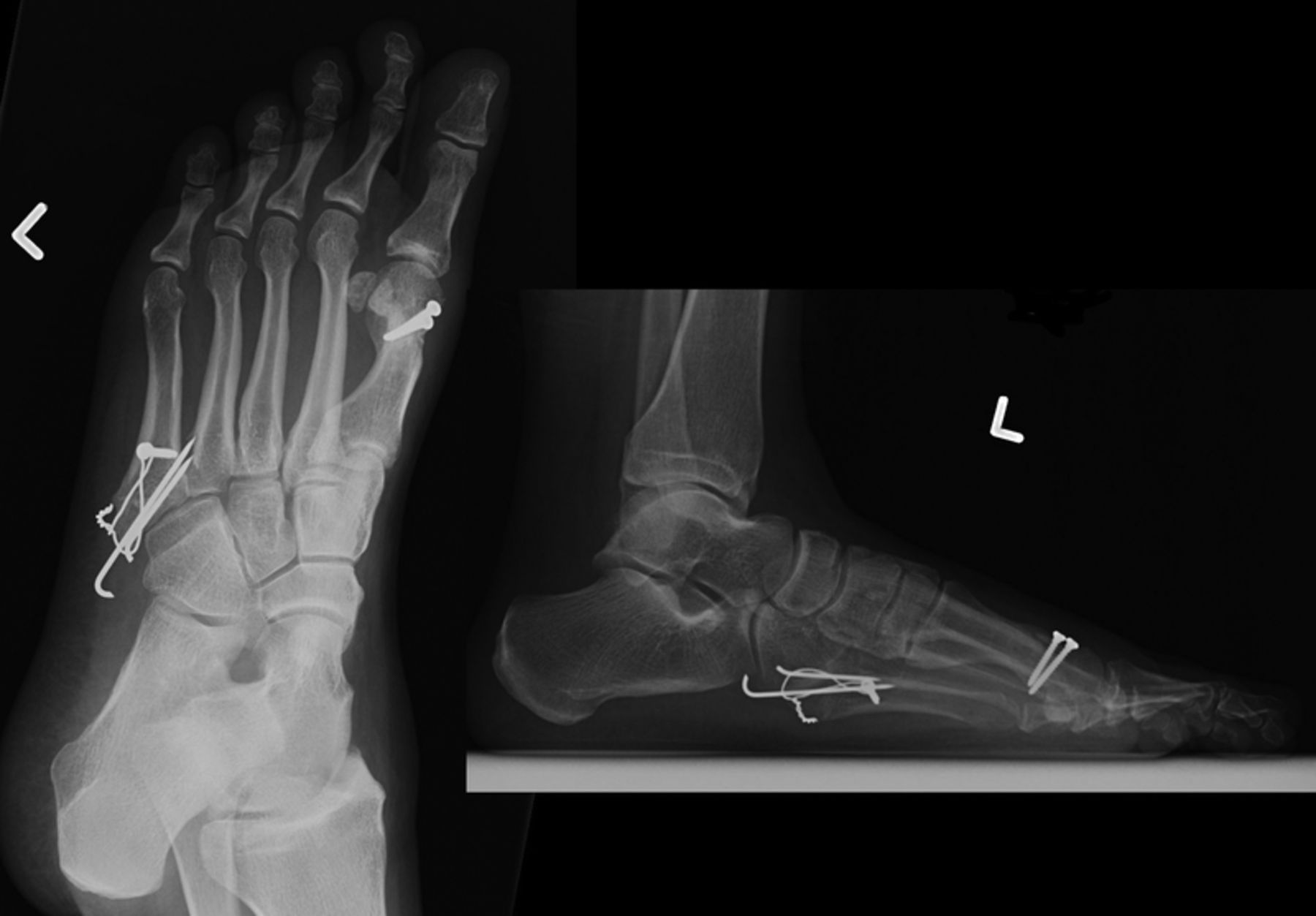 Tension Band Wiring Foot Not Lossing Diagram Olecranon Lateral Pain Following Open Reduction And Internal Ao