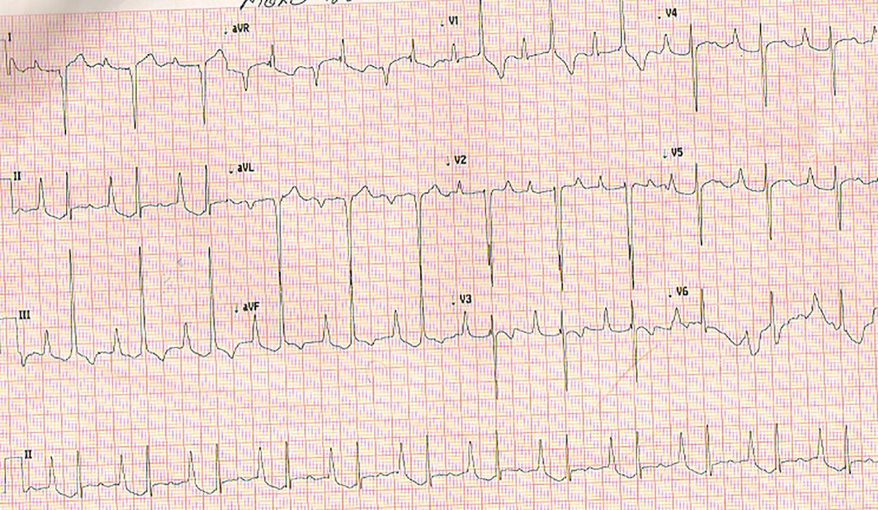 Pentology of Fallot's presenting with complete heart block