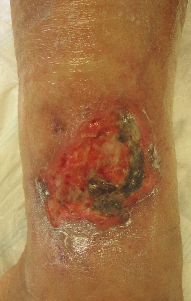 Successful Treatment Of Calciphylaxis By A