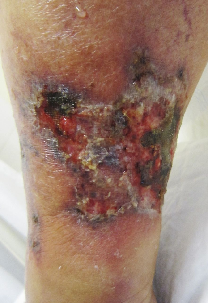 successful treatment of calciphylaxis by a multidisciplinary approach