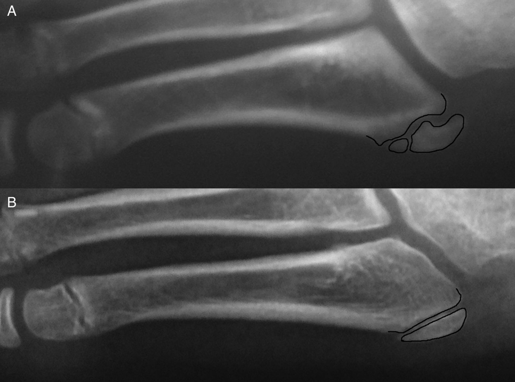 traction apophysitis of the fifth metatarsal base in a