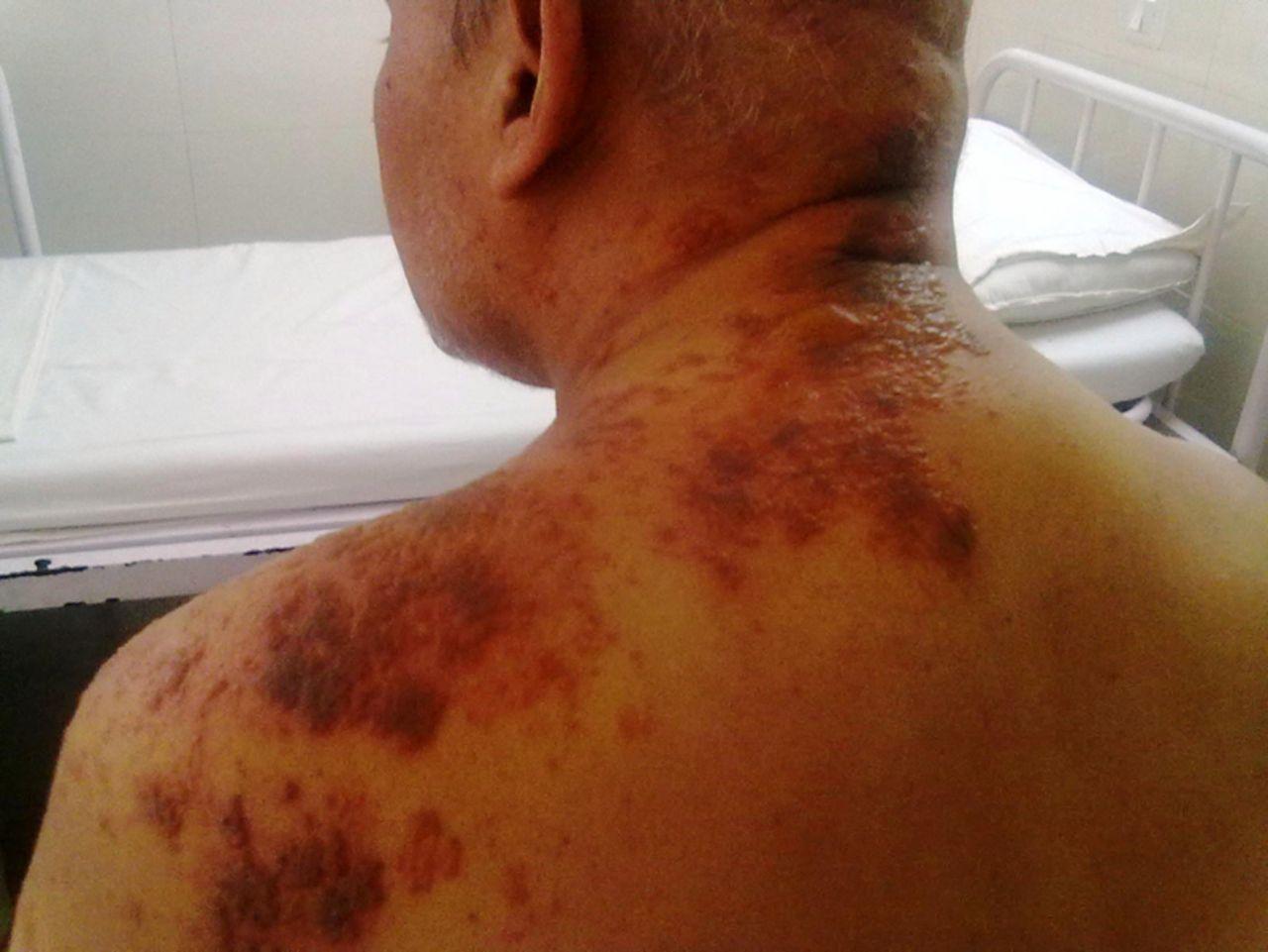 Multidermatomal Herpes Zoster Bmj Case Reports