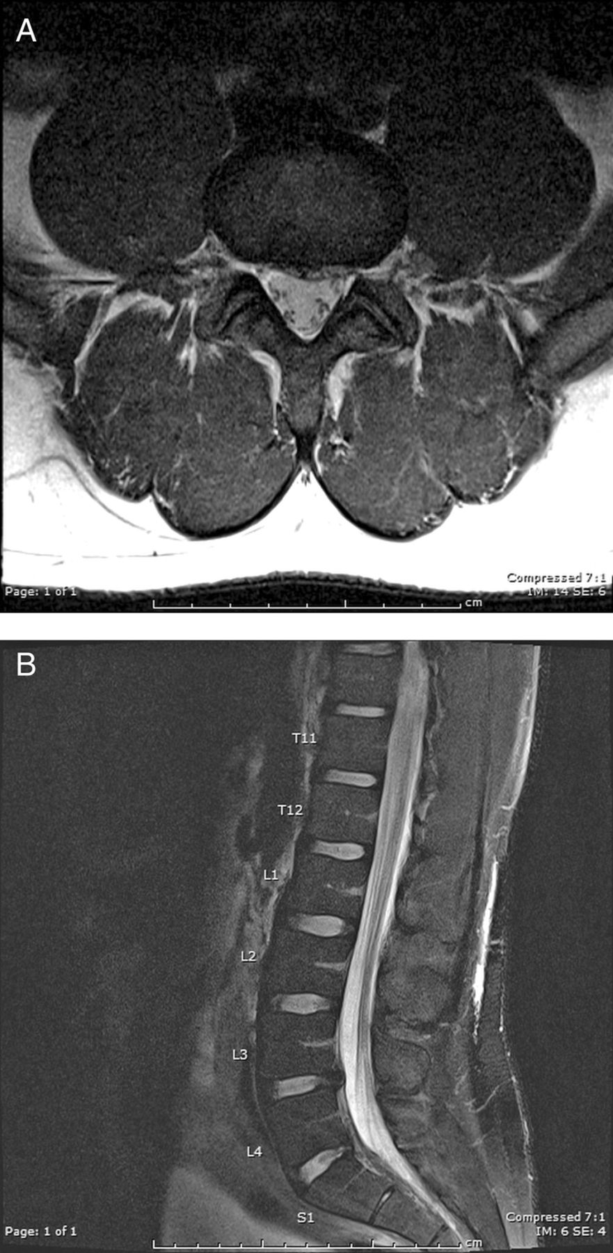 Spontaneous resolution of idiopathic lumbar subdural hygroma