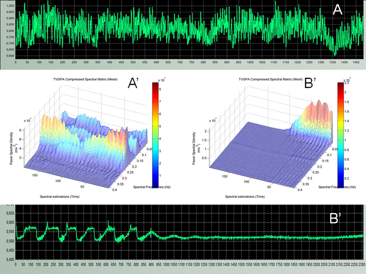 Residual vasomotor activity assessed by heart rate variability in a