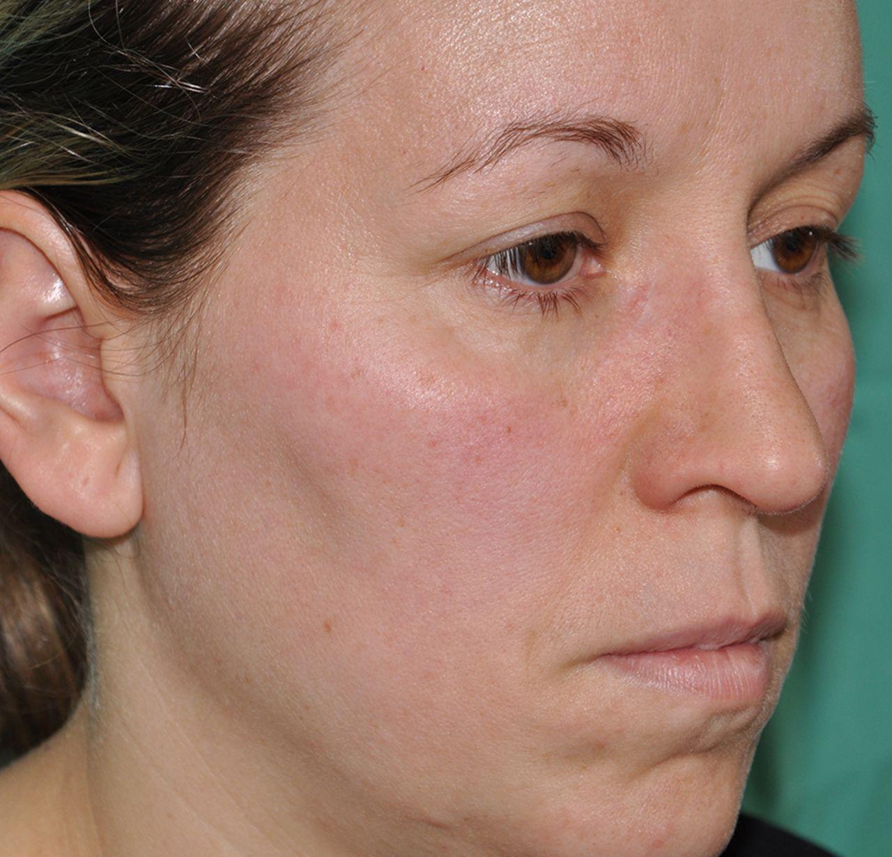Subcutaneous sarcoidosis in a rhinoplasty scar | BMJ Case