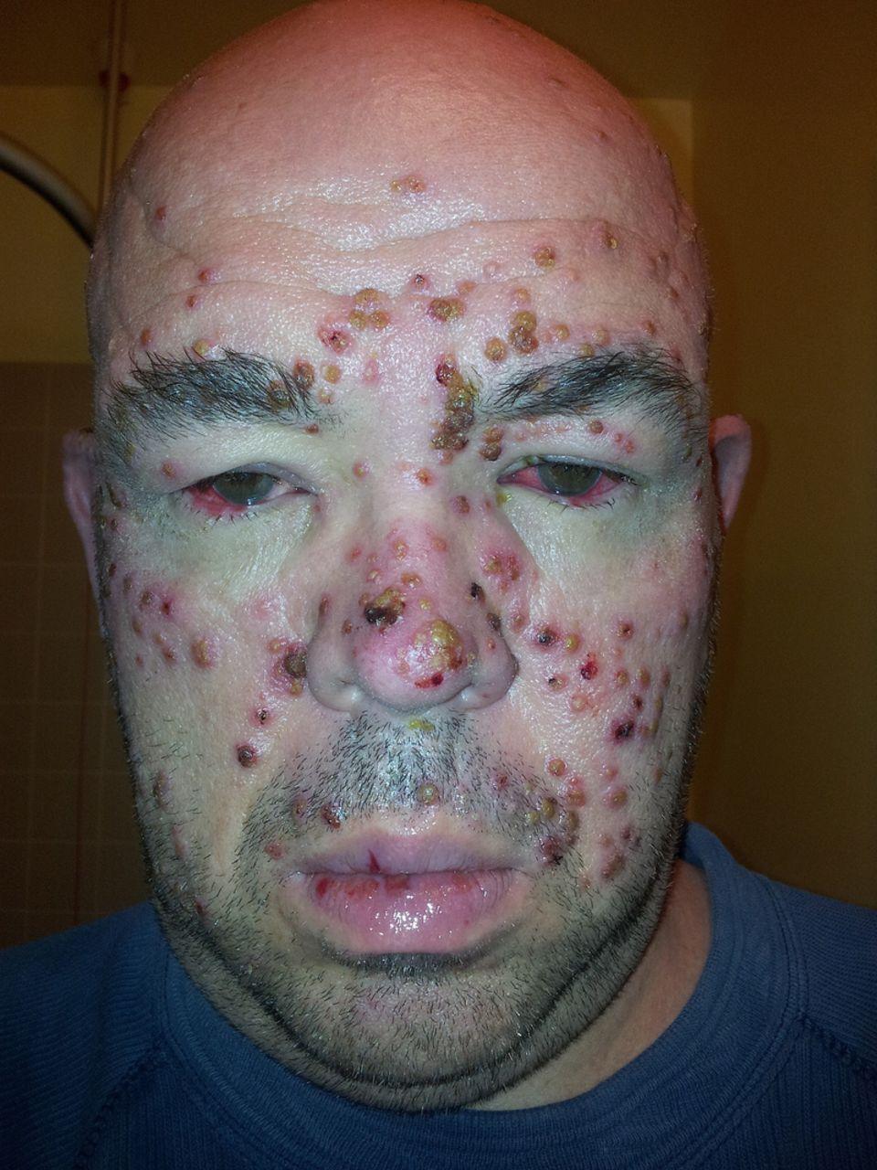 Recurrent Presumed Herpes Simplex Keratitis And Episcleritis In Keratosis Follicularis  Darier U0026 39 S