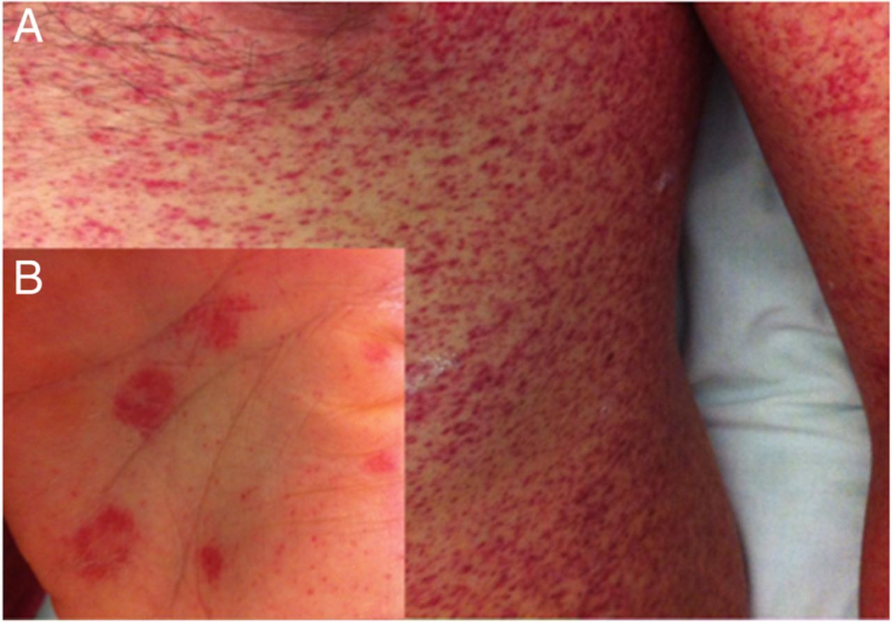 atypical measles in adults