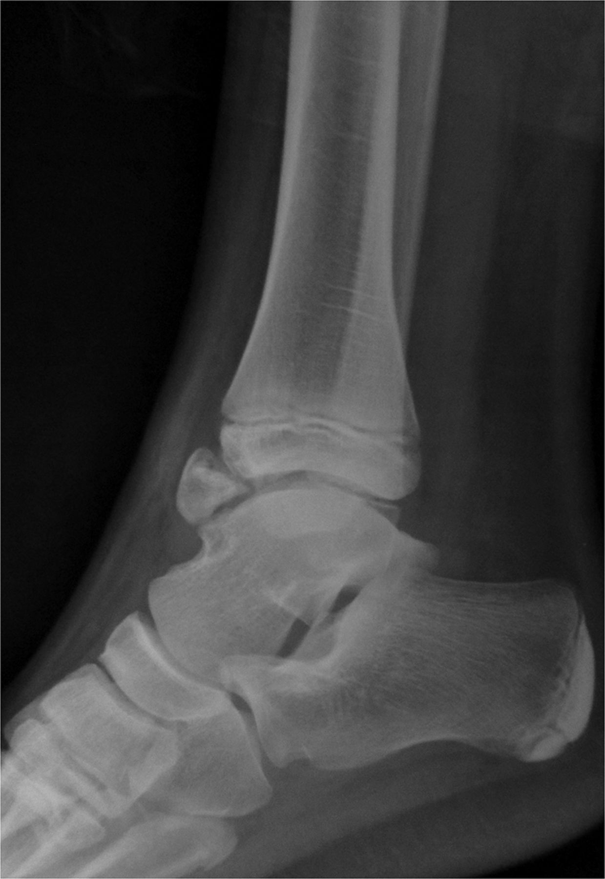 Dysplasia epiphysealis hemimelica of the ankle: a fracture-like rare